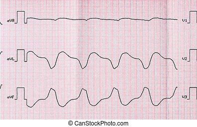 Tape ECG with paroxysmal ventricular tachycardia after...