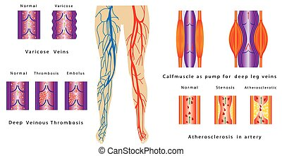 Vascular System Legs. Atherosclerosis in artery. Deep venous...