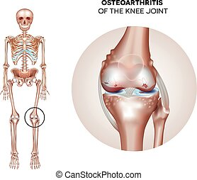 Arthritis of the knee joint, damaged joint cartilage and...