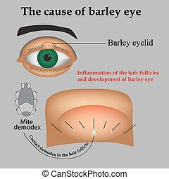 Diseases of the eye barley. Causes of barley. Demodex mite infestations. Inflammation volosyannoy bulbs