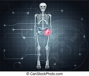 Skeleton with Hip joint pain - Human skeleton with hip pain...