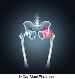 Human pelvis hip pain on a dark radial background