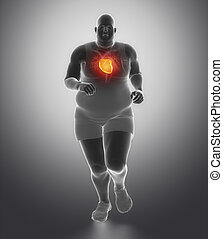 Obese man heart problem