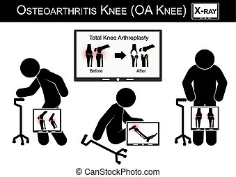 Old man pain at his knee , Monitor show image of Total knee...