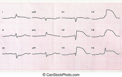 ECG with acute period macrofocal anterior myocardial...