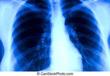 radiografía, imagen, tórax, fumador