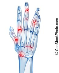 arthritis - 3d rendered illustration of a skeletal hand with...
