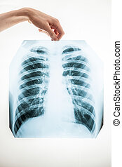 Closeup of man holding lungs x-ray film over white...
