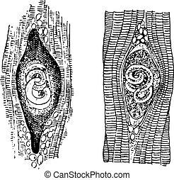 Trichina spiralis, vintage engraving. - Trichina spiralis,...