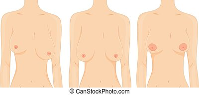 Girl Breasts - Illustration of Women Depicting the Different...