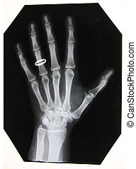 black and white photo of x-ray picture of woman hand with...