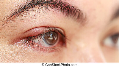 "Right upper eye lid abscess ""stye or hordeolum"" - Close up..."