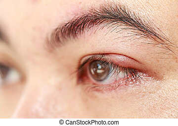 "Left upper eye lid abscess ""stye or hordeolum"" - Close up..."