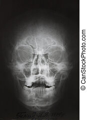 photo of frontal x-ray picture of human skull in natural colors