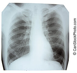 X-ray picture showing a normal chest area