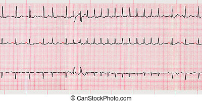 ECG with supraventricular arrhythmias and short paroxysm of...