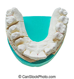 Positive teeth cast - Positive dental mould reproduction...