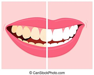 Before and after view of teeth whitening using dental bleach...