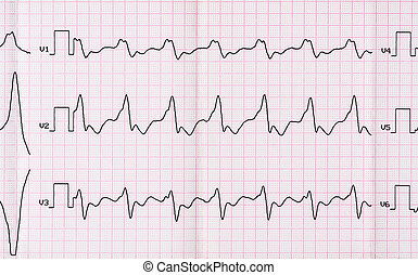 ECG with paroxysm correct form of atrial flutter with...