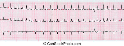 ECG with supraventricular premature beats and short...