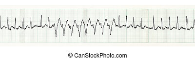 ECG with paroxysm of atrial fibrillation and transient...