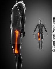 FEMUR black x--ray bone scan