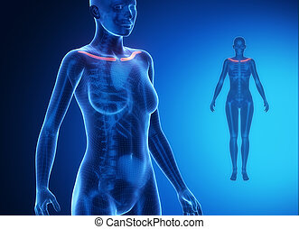 CLAVICLE blue x--ray bone scan