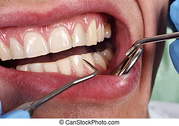 patient open mouth before oral inspection with hook and...