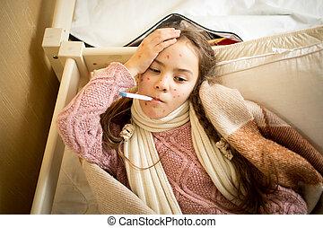 enfermo, niña, con, varicela, acostado, en, Cama, y,...