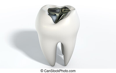 Tooth With Lead Filling - A lead cavity filling on a single...