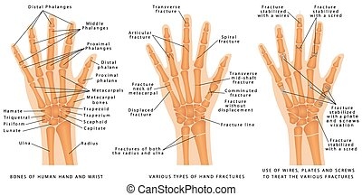 Hand fractures - Various types of hand fractures. Fractures...
