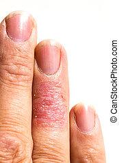 enfermo,  eczema, erupción,  dematitis, dedo, piel, Alérgico