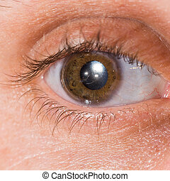 eye exam - Close up of the intra ocular lens during eye...