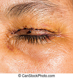 eye exam - Close up of the post blepharoplasty during eye...