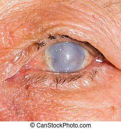 eye exam - Close up of the total opacity cornea during eye...