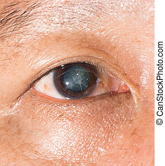 eye exam - Close up of the cortical cataract during eye...