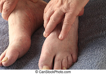 Senior with nail fungus and athletes foot - A man's hands on...