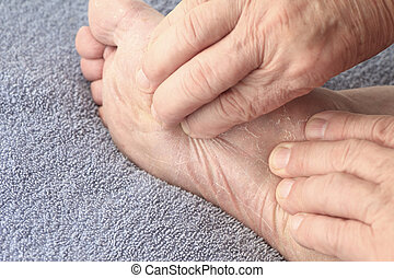 Dry skin on sole of foot