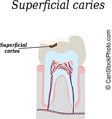 Home tooth caries. Vector illustration on isolated...