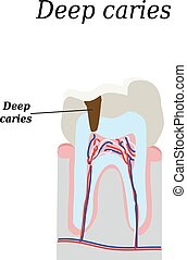 Deep tooth decay. Vector illustration on isolated...