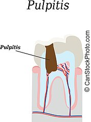 Dental pulp. Vector illustration on isolated background.
