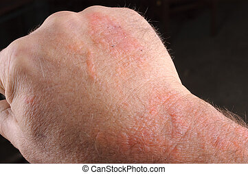 poison oak - Rash on arm caused by poison oak