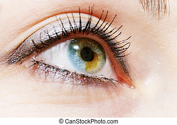 birthmark on the iris - Female eye with a birthmark on the...