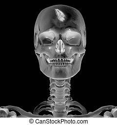 3D Radiograph with head injury