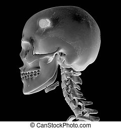 3D, radiograph, cabeça, ferimento