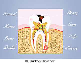 tooth scheme - illustration of tooth scheme