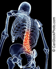 Painful spine