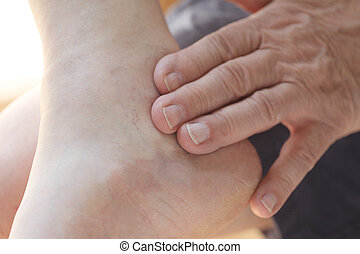 Older man has painful ankle