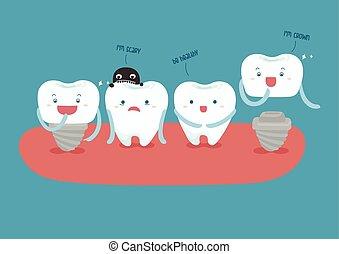 Dental implant vector - dental implant vector