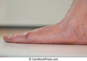 flat- foot with a bunion - adult flat- foot with a bunion